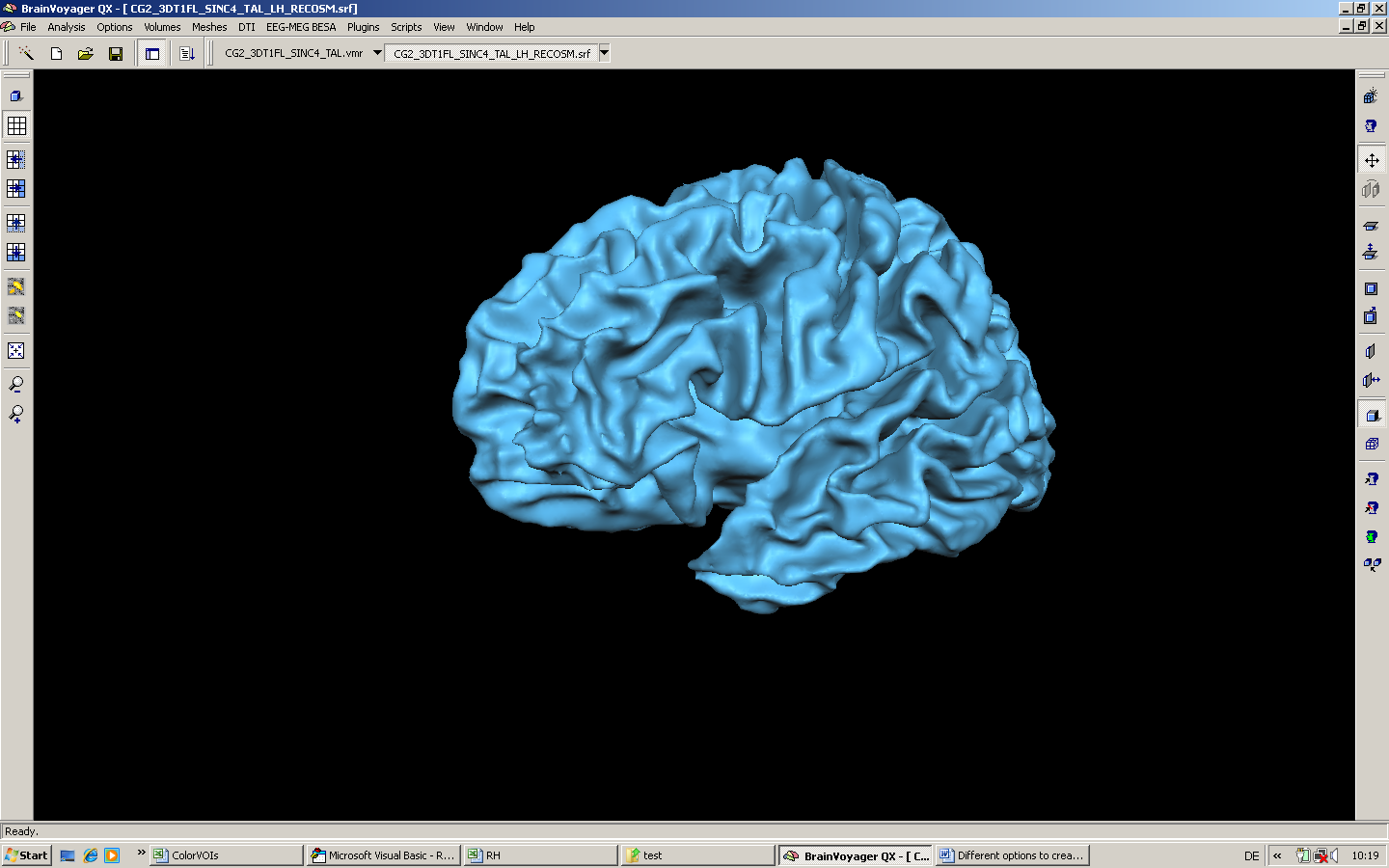 Grey matter mask using the segmentation result for Space created