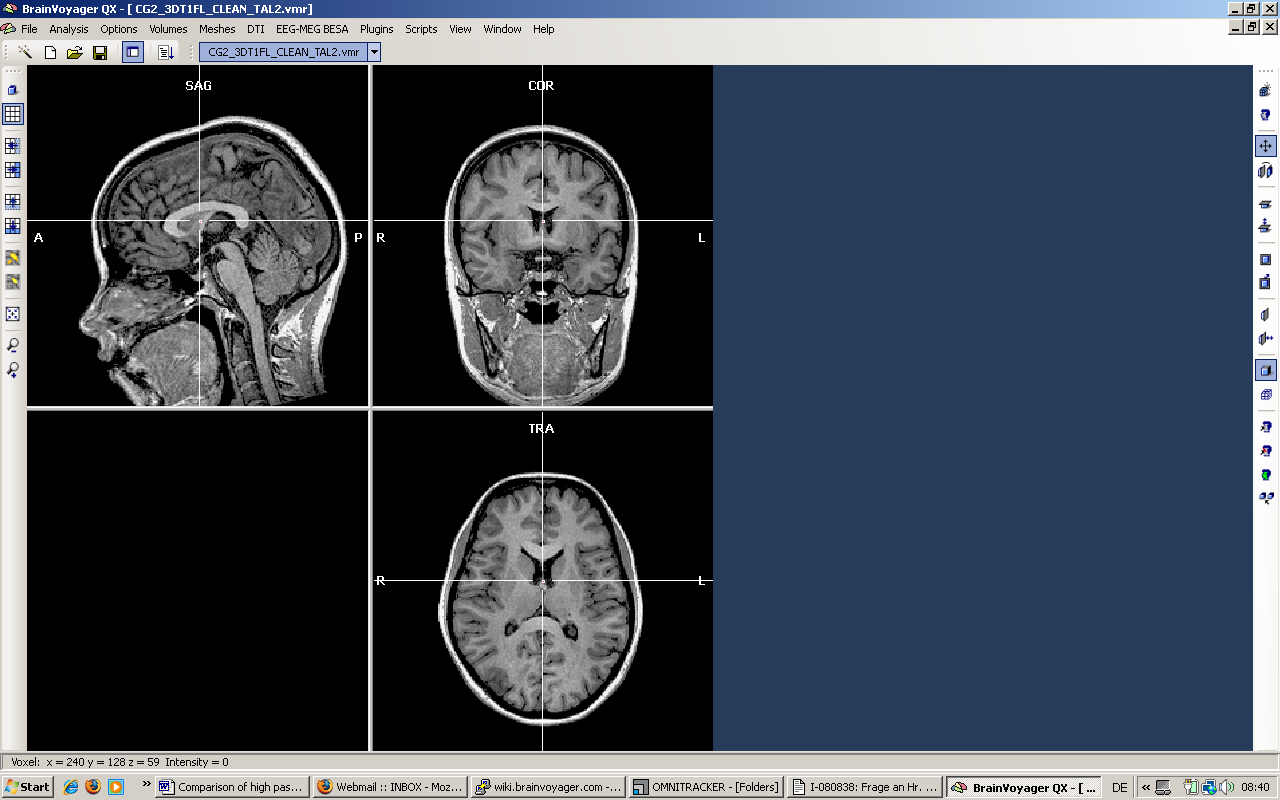 How To Fill The Ventricles Manually Support Brainvoyager